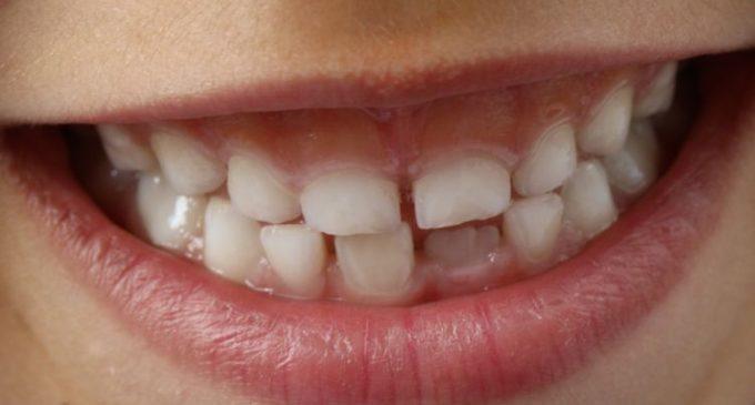 L'homme va-t-il perdre ses dents de sagesse