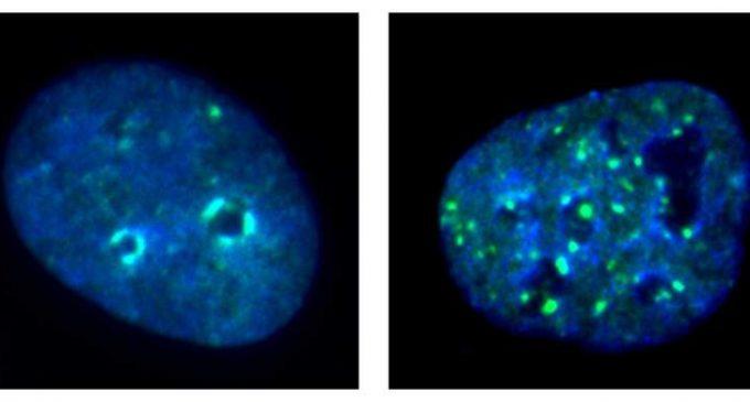 La désactivation du gène des cellules cancéreuses stimule l'immunothérapie des cancers de la tête et du cou